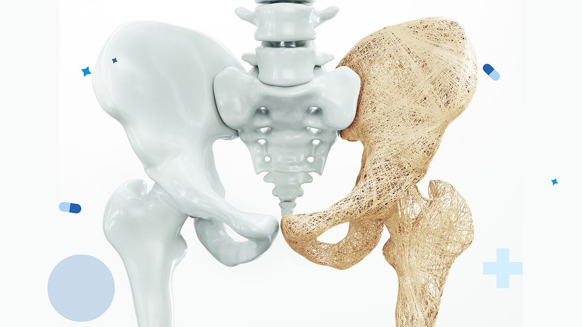 Surcharge pondérale et ostéoporose